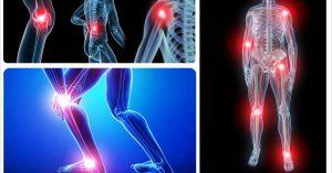 thuốc trị đau xương khớp của malaysia